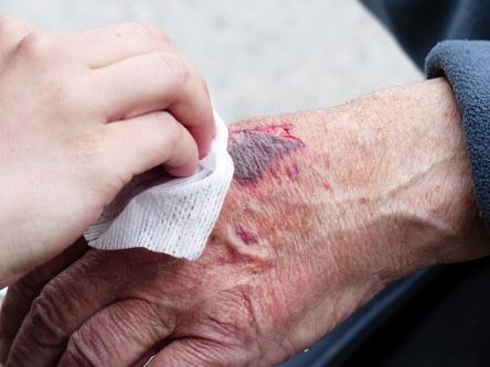 wound skin